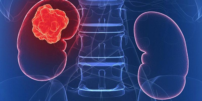 Böbrek Kanseri Belirtileri Nelerdir? Tedavisi Nasıldır?